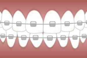 Dobry ortodonta w Rzeszowie