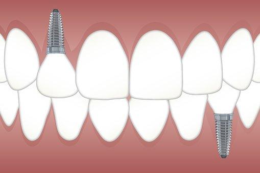 implanty - Wola