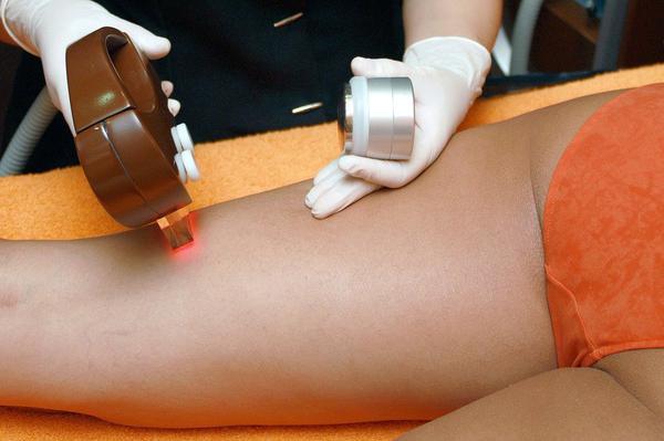bezpieczne laserowe usuwanie owłosienia - szczecin